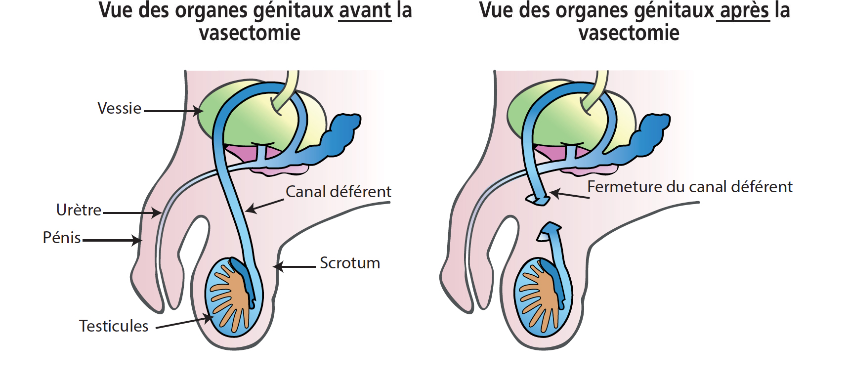 Vasectomie sans chirurgie